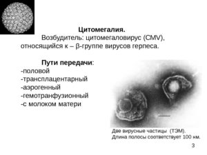 Цитомегаловирусная инфекция (cytomegalia)